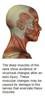 Muscle Injury After Whiplash
